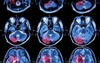 Film MRI of brain